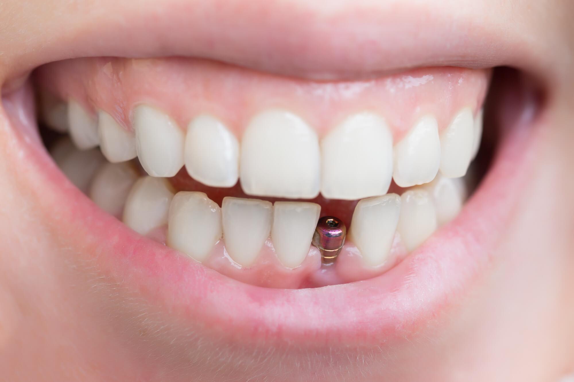 The Advantage Of Dental Implantation In Brooklyn